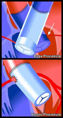 Ross & Konno Procedures